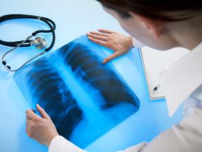 Хирургическая эндоскопия