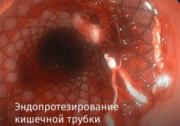 Эндопротезирование кишечной трубки